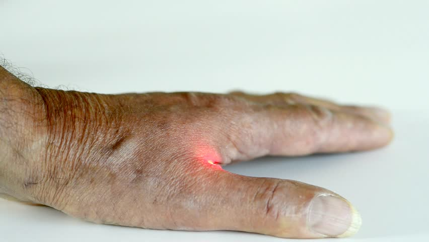 Acupuncture therapy with laser on human hand | Shutterstock HD Video #11178671