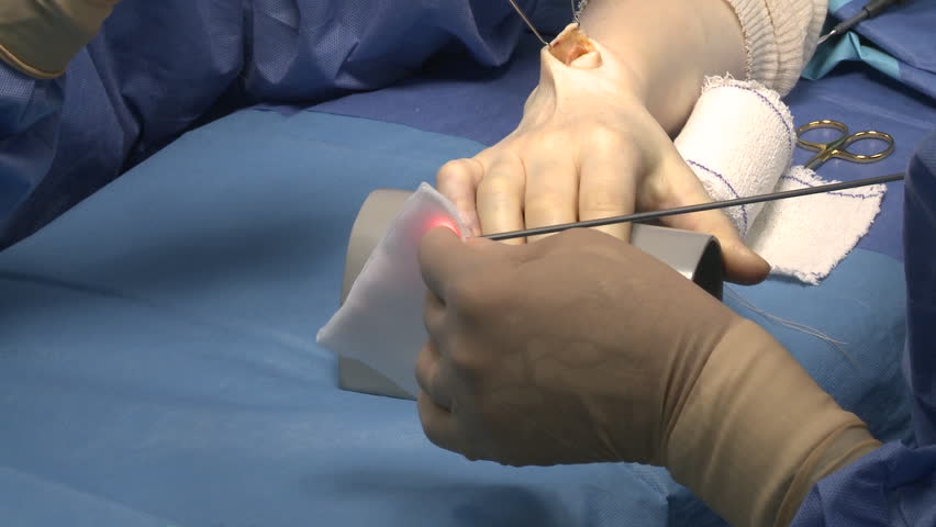 surgery in an operating room/cleaning contact endoscope lens