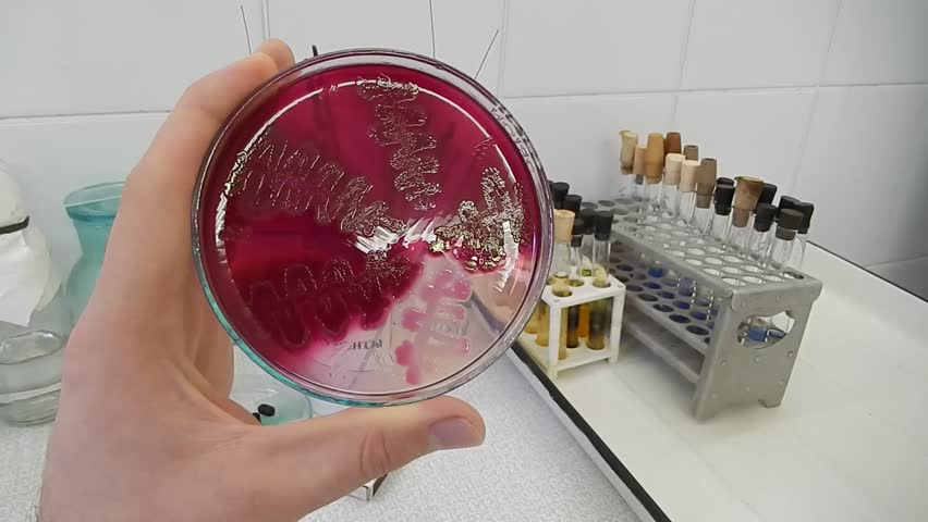 Scientist analyzing bacterial culture in a petri dish in the microbiological laboratory - HD stock video clip