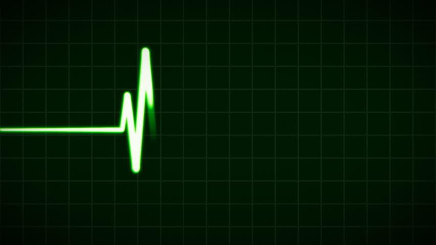 ECG Cardiovascular heart monitor showing heartbeat pulse. HD 1080.