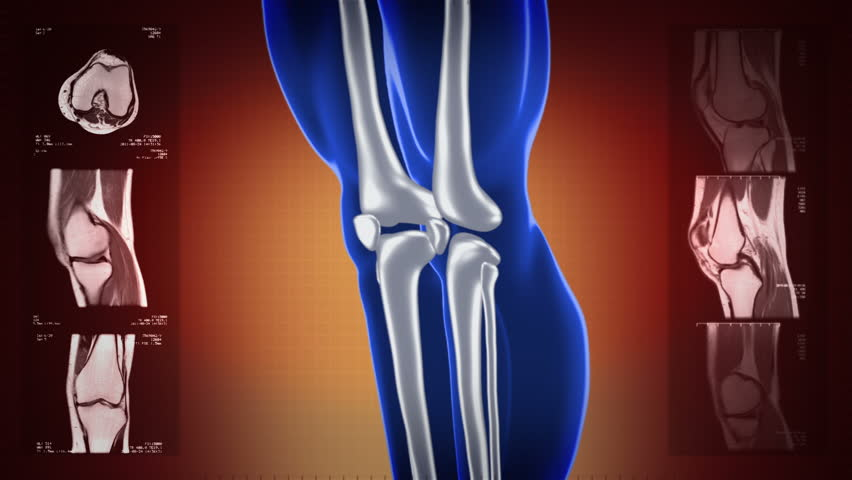 Highly detailed knee scan. Loopable. Red and blue. Red background. MRI images also included. More color options in my portfolio. - HD stock footage clip