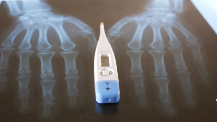 An electronic thermometer lies on the x-ray of the hands. Close-up   Shutterstock HD Video #25229624