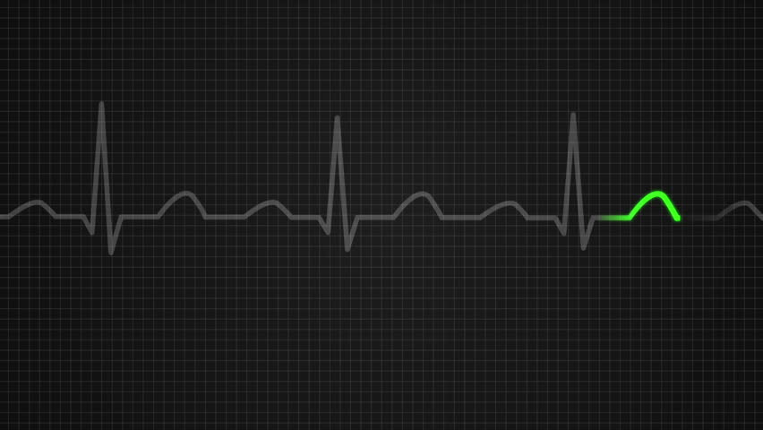 heartbeat wave wallpaper pictures - photo #39