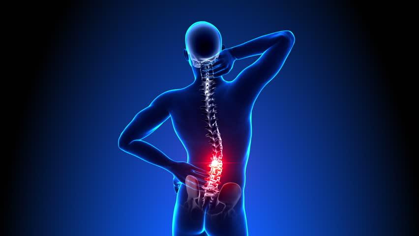Hurt Spine - Male Hurt Backbone - Backache Headache - Vertebrae Pain