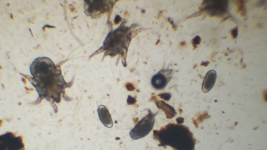 Ear Mites On Cat Picture