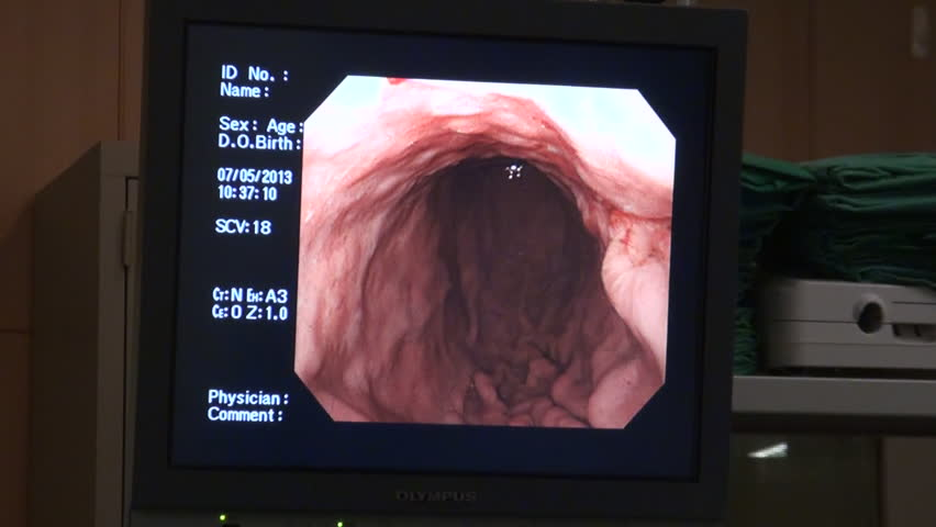 Endoscopy diagnose monitor